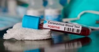 Primer caso positivo de coronavirus en Pergamino