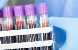 Reportan 28 nuevos contagios de COVID-19